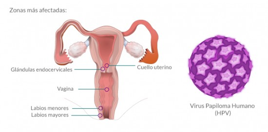 HPV-infografia1