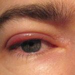 Información sobre la inflamación de ojo – blefaritis