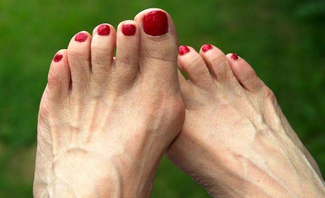 cuales son los alimentos que producen acido urico como bajar la inflamacion de los pies por acido urico acido urico formula molecular