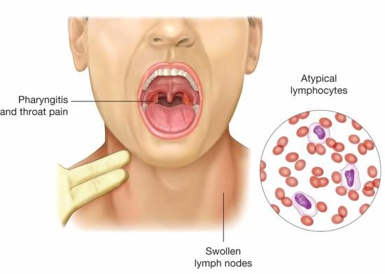 mononucleosis (1)