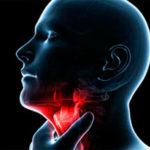 Información sobre la Laringitis: Síntomas en adultos y niños