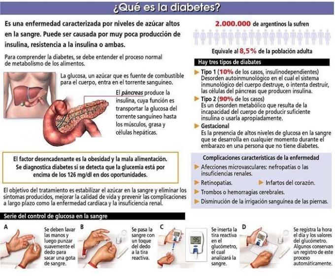 Información de la Diabetes: Definición, síntomas, causas y