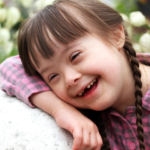 Síndrome de Down: Información, causas y rasgos