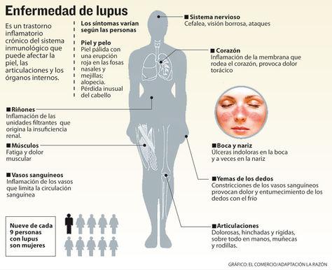Informe-enfermedad-lupus_LRZIMA20140513_0028_11
