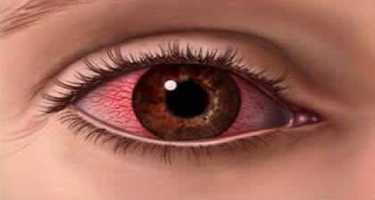ojo rojo_clip_image002