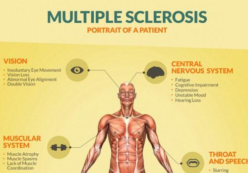 multiple%2Bsclerosis