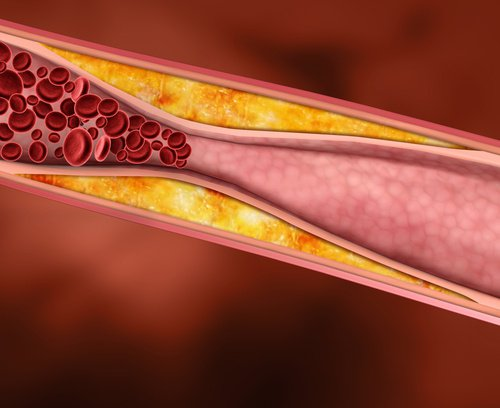 Colesterol1-500x408