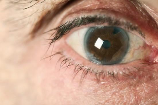 glaucoma-585x389