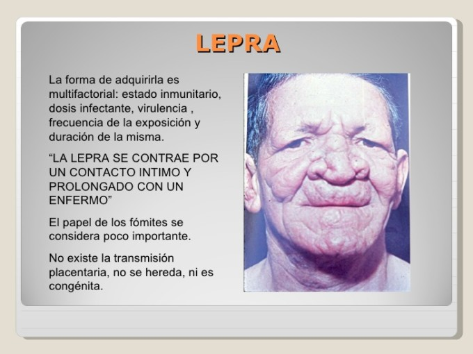 4-tuberculosissifilis-lepra-64-728
