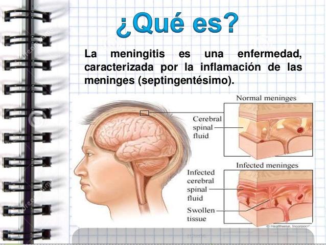 que-es-la-meningitis-3-638