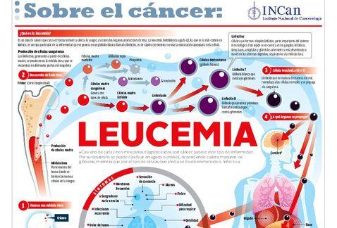 leucemia-cancer_MILIMA20131104_0322_30