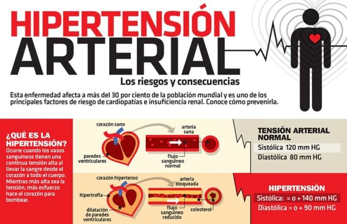 Sintomas de presión alta - Informacionde.info